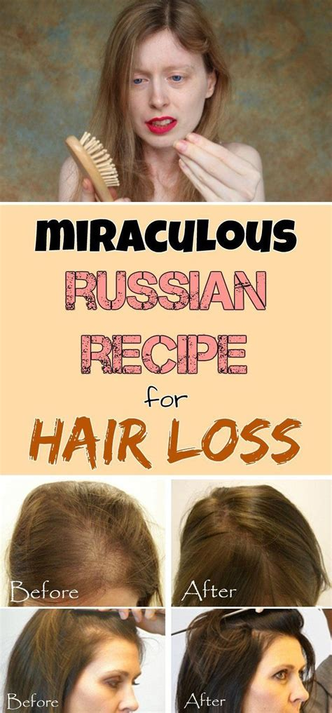 female pattern hair loss supplements 1000 images about my hair loss prevention solutions on