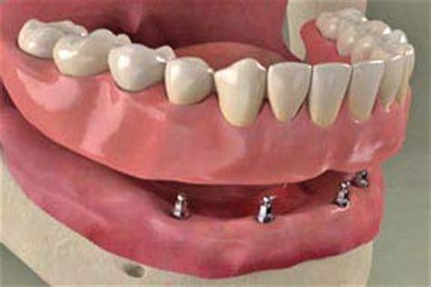 protesi mobile su impianti protesi fissa o mobile su impianti leonardo dental