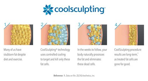 how coolsculpting works southeast sculpting