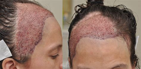 Permanent Head Hair Without Surgery | cancer patients reconstructive hair transplant update