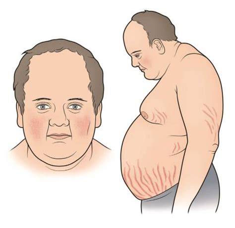 cusions disease el s 237 ndrome de cushing