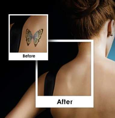 tattoo removal chesterfield home methods for removal