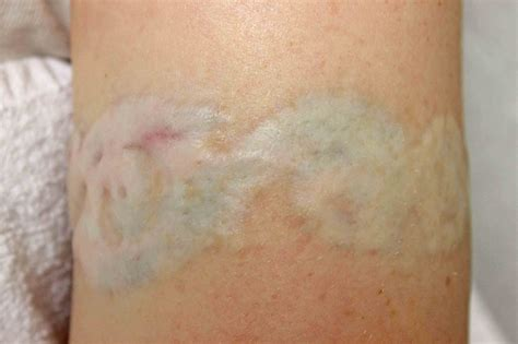 tattoo after removal removal voltaicplasma areton ltd
