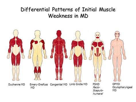 myotonic dystrophy pattern of weakness muscular dystrophies ppt video online download