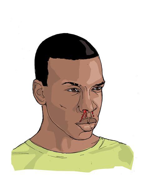 bloody nose infographics illustrations ebola ebola virus disease cdc