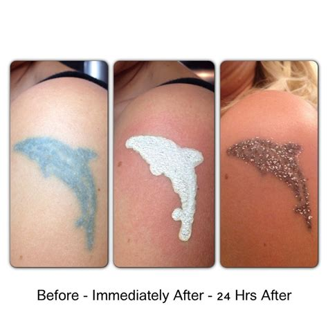 pin by erase tattoo removal on tattoo removal process