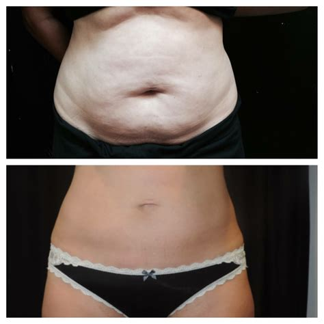 coolsculpting at home with coolsculpting reno freezing