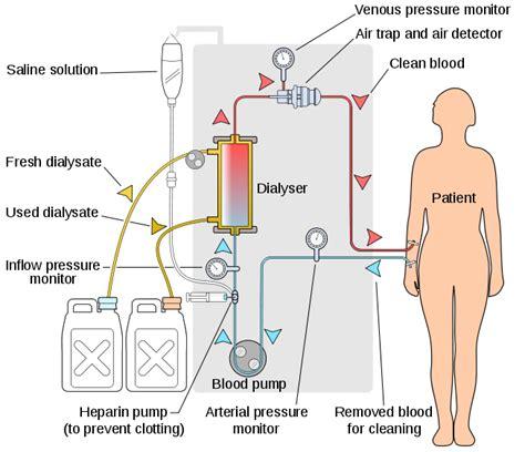 Mesin Cuci Darah Hemodialisa ini cara kerja mesin cuci darah pada penderita gagal ginjal medianers