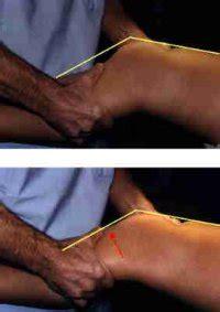 tiroir du genou lcadiagnostic