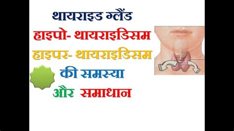 natural design meaning in hindi thyroid gland hyperthyroidism hypothyroidism natural cure