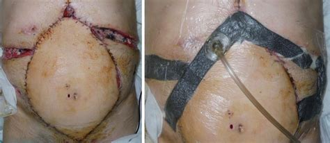 Wound Vac On C Section Incision by World Journal Of Dermatology Baishideng Publishing
