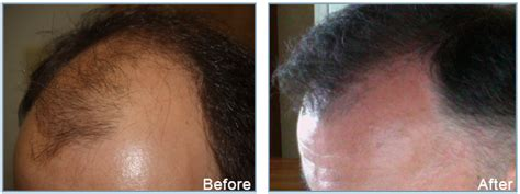 hair transplant center nyc hair transplantations nyc the fueture is here fue in miami and nyc dr epstein