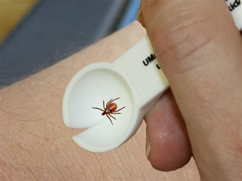remove tick from removing a tick from a 28 images ticks on dogs prevention disease risk and tick