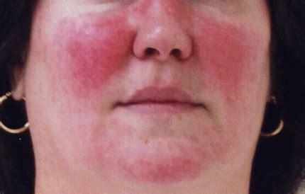 intolleranza alimentare sintomi adulti rosacea foto sintomi cause e cura farmaco e cura