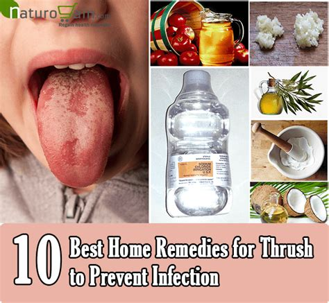 10 best home remedies for thrush to prevent infection