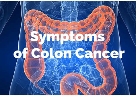 Blood In Stool Cancer by This One Is Completely Within Our Control Colon Cancer