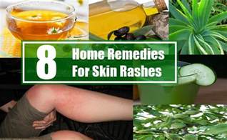 home remedy for rash 8 home remedies for skin rashes search home remedy
