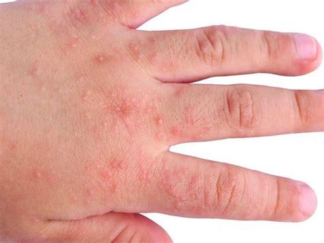 dermatite atopica bambini alimentazione dermatite atopica bambini passione mamma