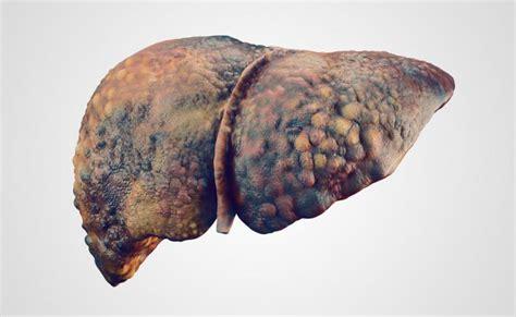 cirrosi epatica alimentazione cirrosi epatica tutti i rischi della malattia pazienti it