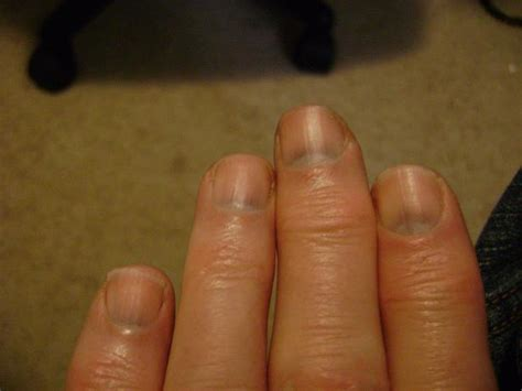 dark nail beds dark nail beds what does it mean photo 1 the nail for you