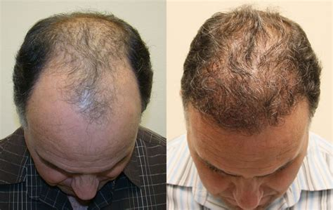 new hair restoration techniques hair transplant new techniques dr a s clinic world s 1