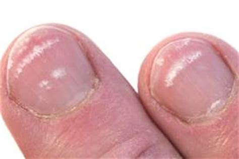white spots on nail beds what causes white spot to appear on your nails how to
