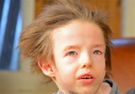 Hair Disease Types by Menkes Disease Symptoms Causes Diagnosis And Treatment