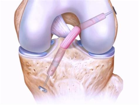 acl surgery cost what is the total cost of an acl reconstruction surgery in a hospital in apollo delhi