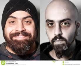 heroin bilder vorher nachher vorher und nachher vom kranken mann droge beigemischt