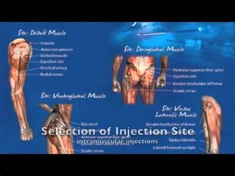 Detox From Testosterone Injections by M 225 S De 25 Ideas Incre 237 Bles Sobre Inyecciones De