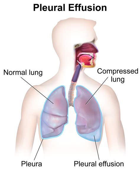 fluid in lungs after c section wiki pleural effusion upcscavenger