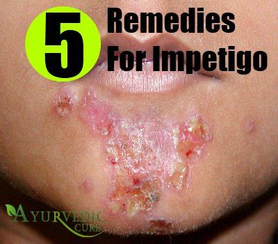 impetigo home remedies treatments and cure usa
