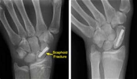 BEWARE - SCAPHOID FRACTURES!!! - Chelsea Longbeach ... Fractured Wrist Treatment