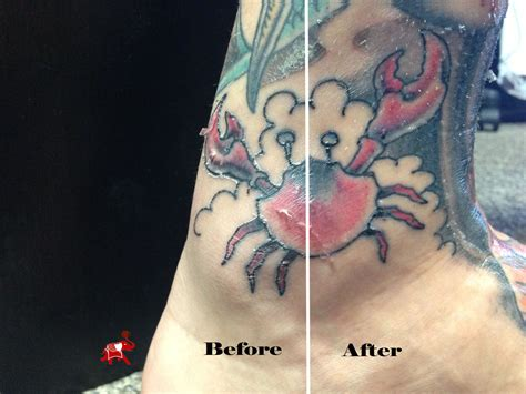 image gallery healing a tattoo