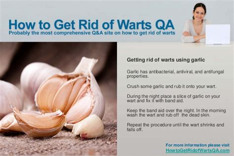 How To Get Rid Of Planter Warts by How To Get Rid Of Warts Naturally
