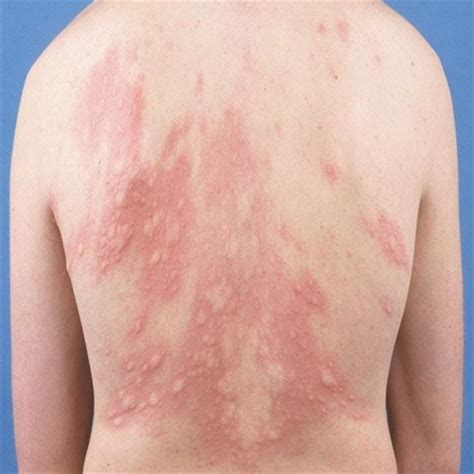 hives treatment 5 urticaria herbal remedies treatments and cure search herbal home remedy