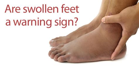 how long will my feet be swollen after c section what your looks indicate about your health indian