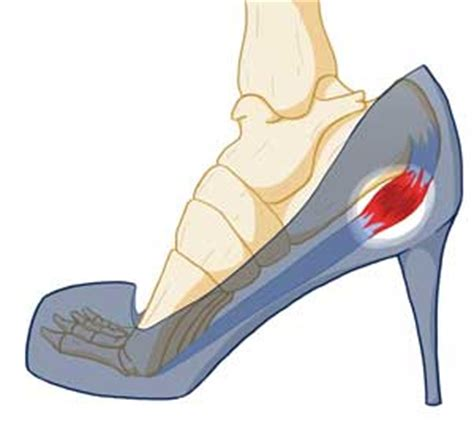 high heels for plantar fasciitis what you don t about high heels tendonitis of foot