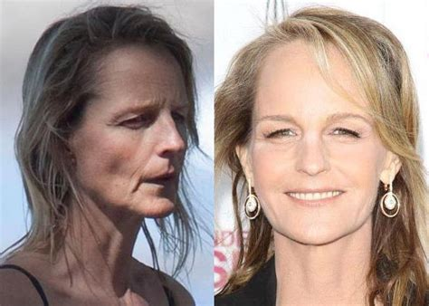 dominique sachse plastic surgery before and after photos image gallery helen hunt plastic surgery