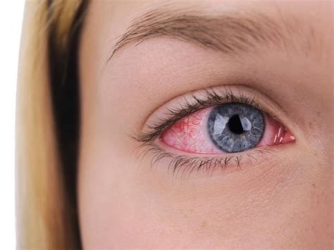 imagenes con ojos causas de los ojos rojos