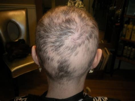 hair loss after chemotherapy chemotherapy hair loss hair tomuch us