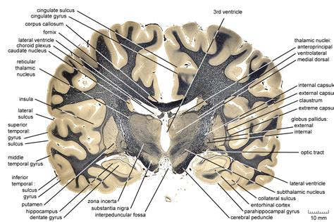 coronal section of skull coronal section of human brain google search anatomy