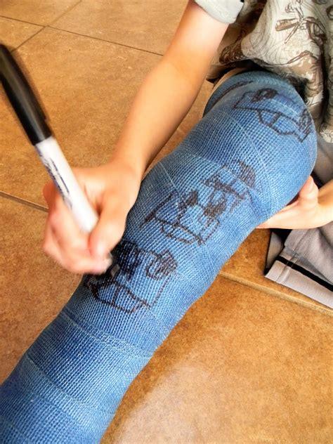 Leg Cast Drawings home a kid in a leg cast