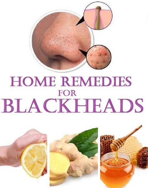 home remedies for blackheads home made