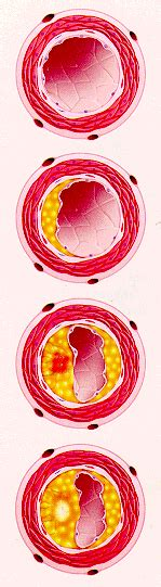 infiammazione vasi sanguigni malattie cardiovascolari e aterosclerosi