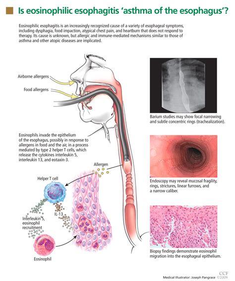 icd 10 food impaction esophagus eosinophilic esophagitis