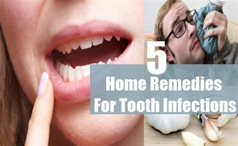 5 tooth infections home remedies treatments and