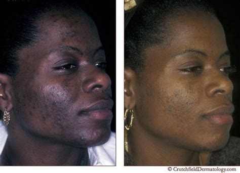 a review of acne in ethnic skin pathogenesis clinical 71 best acne and skin images on pinterest natural skin