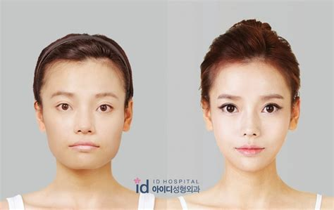 v shape jaw surgery id hospital korea plastic surgery korea plastic surgery