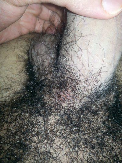 thick extensive pubic hair wikipedia red pubic hair natural red hair any before